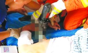 工人手臂不慎被鋼筋扎穿 消防助醫生成功取出